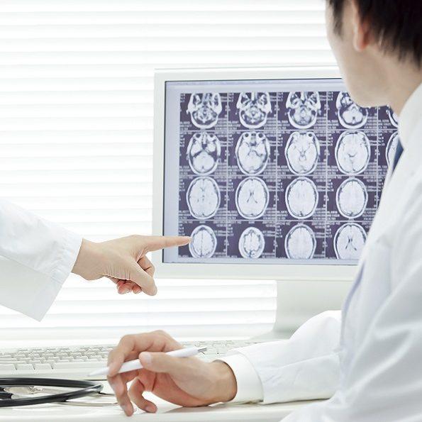 Cervello - cellule staminali